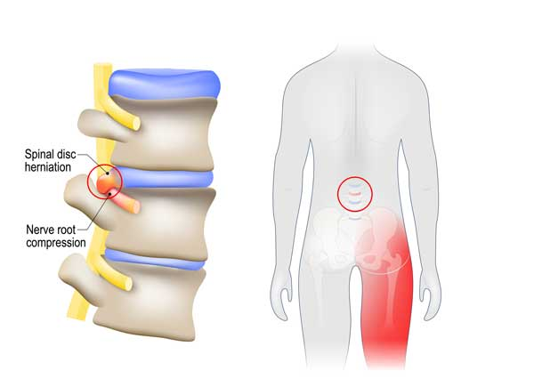 Sciatica pain diagram